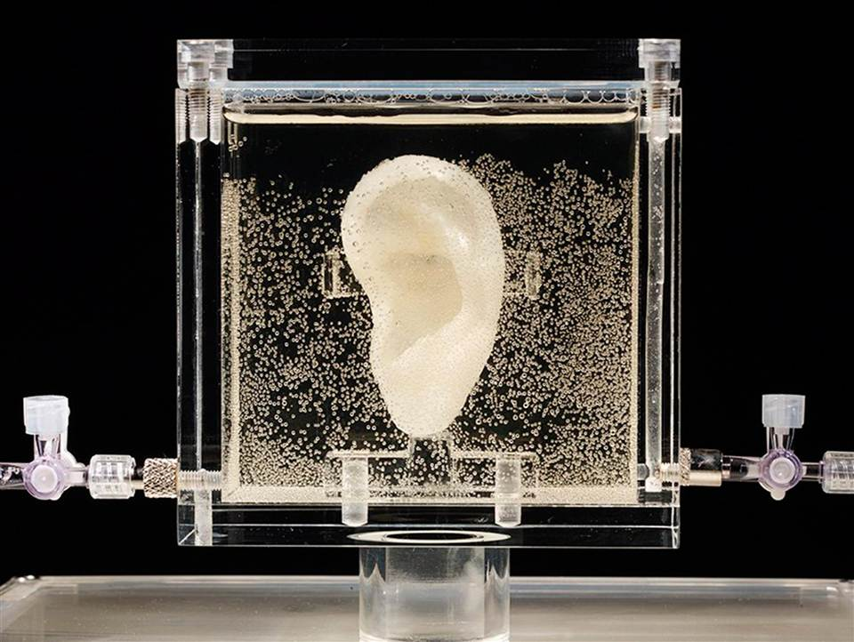 The 3D printed ear of Vincent van Gogh
