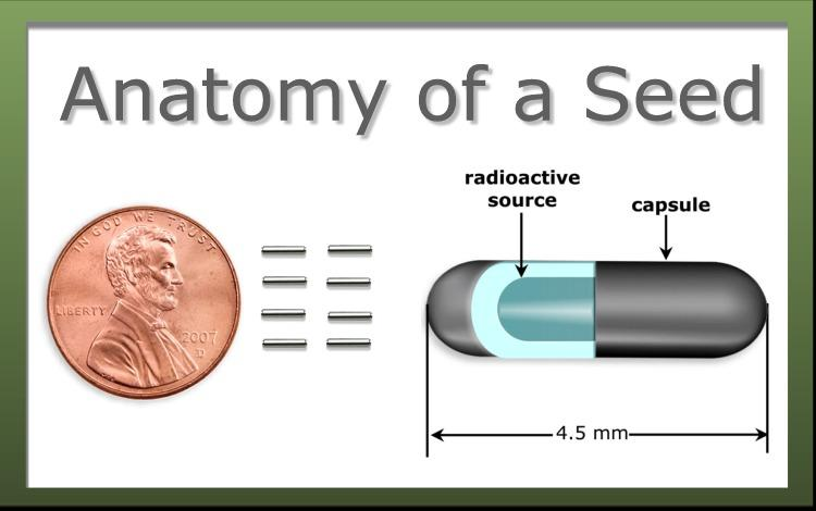 The Anatomy of a radioactive seed (image source: drrichardstock)