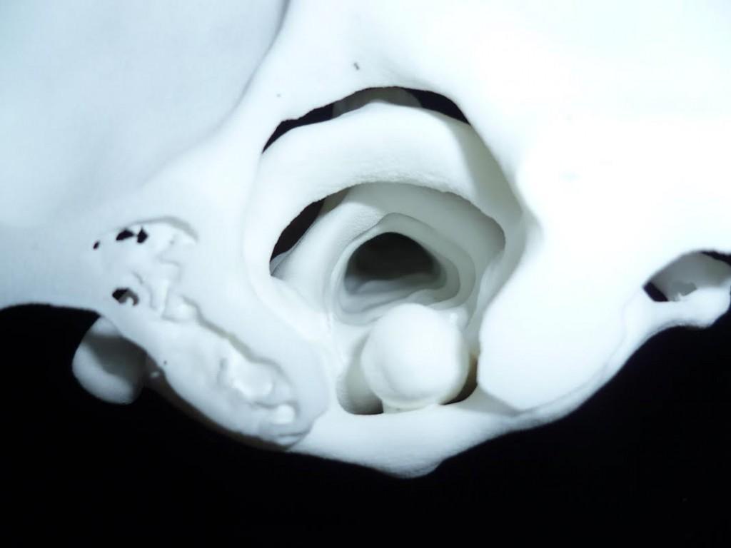 3D Print of Heathcotes Spine