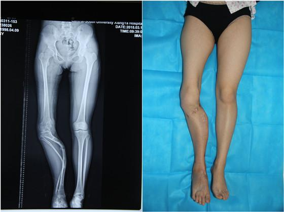 Surgeons 3D Print a Copy of a Woman's Tibia to Straighten Her Severely Deformed Leg
