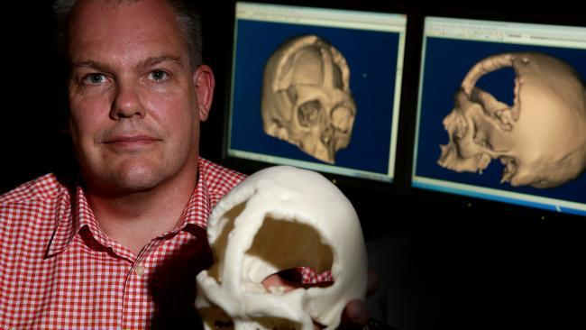 Western Australia: Researchers Use 3D Printing to Make Headway with Cranial Reconstruction