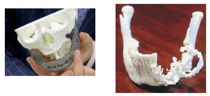 Two South African Cancer Patients Receive 3D Printed Titanium Jaw Implants