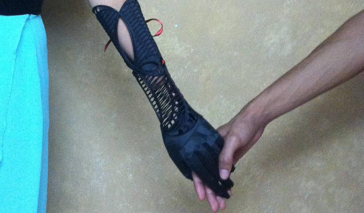 3D Art Meets Prosthetics: Student Creates Beautiful 3D Printed Prosthatic Arm for Friend