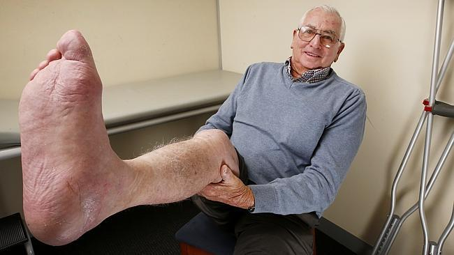 Australian Doctors Save Cancer Patient's Leg From Amputation With 3D Printed Heel Bone