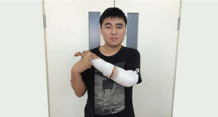 Chinese Man Receives a 3D Printed Elbow Joint After Suffering a Major Work Injury