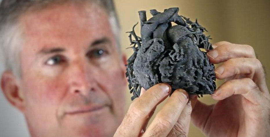 A Little Girl in Miami Saved Thanks to 3D Printed Heart Model