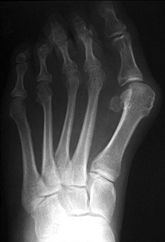 Hallus Vagus - the bunion - is both painful and unattractive.