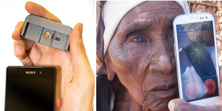 'Peek' Smartphone Eye Exam App with Camera & 3D Printed Adapter, Focuses on Developing Countries