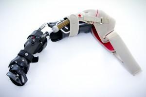 NB-Arm-brace_141-600x400
