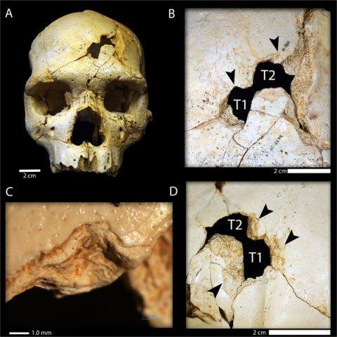 cranium main