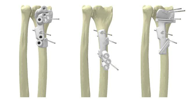 Materialise and Mobelife Announce New Partnerships to Develop 3D Printed Advanced Orthopaedic Implants