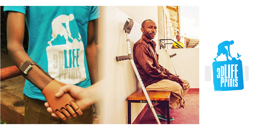3D LifePrints Needs Help Bringing 3D Printed Prosthetics to the World's Poorest Regions