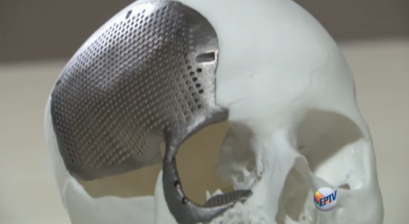 How, When, Why: A Guide to 3D Printing with Titanium ...