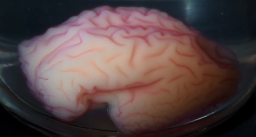 The 3D printed brain during the formation of the simulated brain folds.