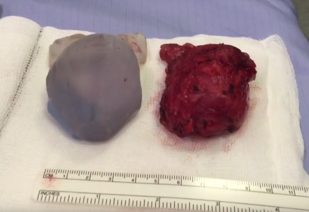 You can see the bulging tumor on the prostate gland that was removed matches exactly its location on the 3D printed replica.