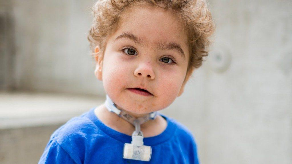 How-3D-printed-devices-saved-three-babies-lives-at-Mott-1024x576