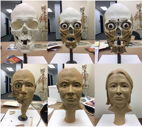 greene-county-facial-reconstruction-progression