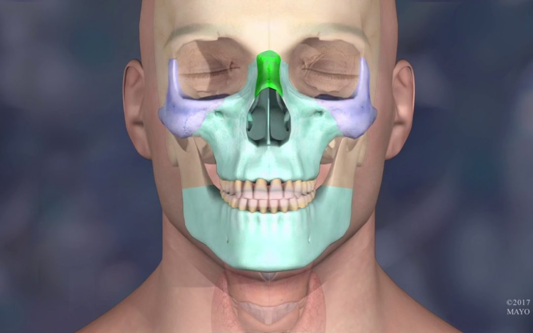 3D Printed Models Used in the Mayo Clinic's First Face Transplant