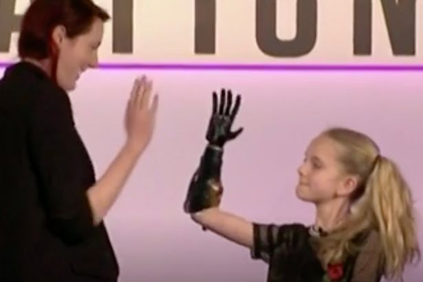 World's First Clinical Trial of 3D Printed Bionic Hands for Children Begins in UK