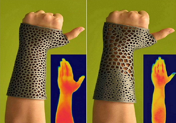 Researchers Take Patient Heat Sensitivity Into Account When Developing 3D Printable Orthopedic Cast