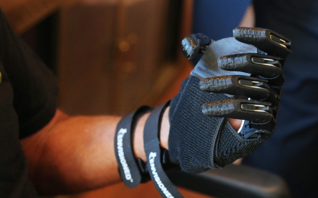 Florida Man Receives New 3D Printed Hands From e-NABLE