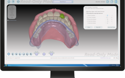 EnvisionTEC and AvaDent Partner to Deliver 3D Printed Denture Solutions