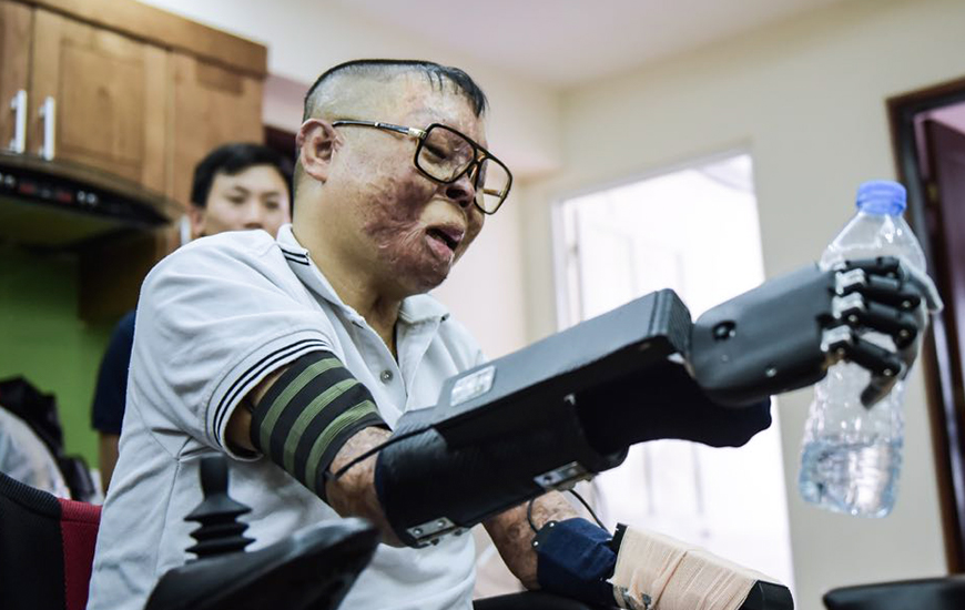 Vietnamese Pilot Receives 3D Printed Bionic Hands