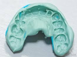 How Accurate are 3D Printed Dental Models?