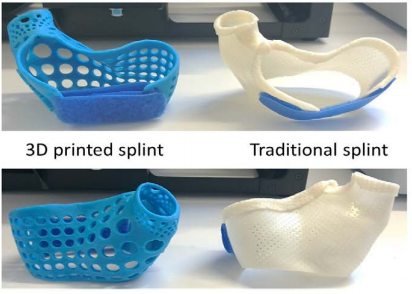 Comparing a 3D Printed Patient Specific Thumb Splint to a Traditional One