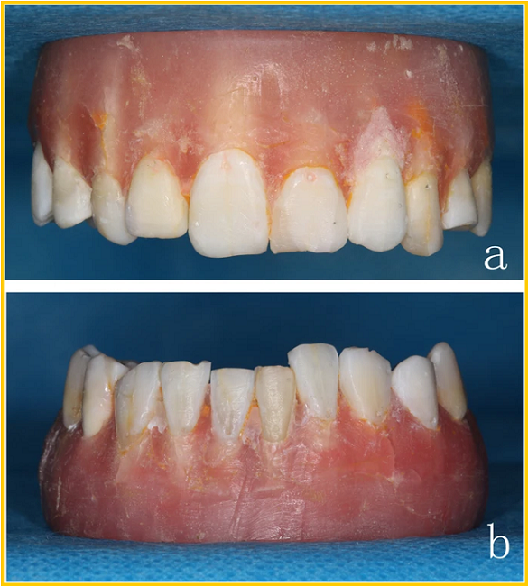 Evaluating 3D-Printed and Conventional Information Plates for Putting Orthodontic Brackets