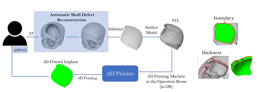 Free Automated Software program to Design 3D Printable Cranial Implants