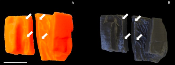 Enhancing Forensic Evaluation of Cranium Fragments with 3D Imaging and FDM 3